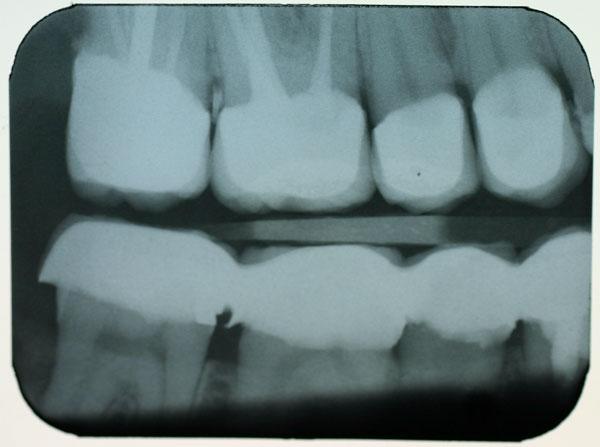 bitewing Röntgenbild