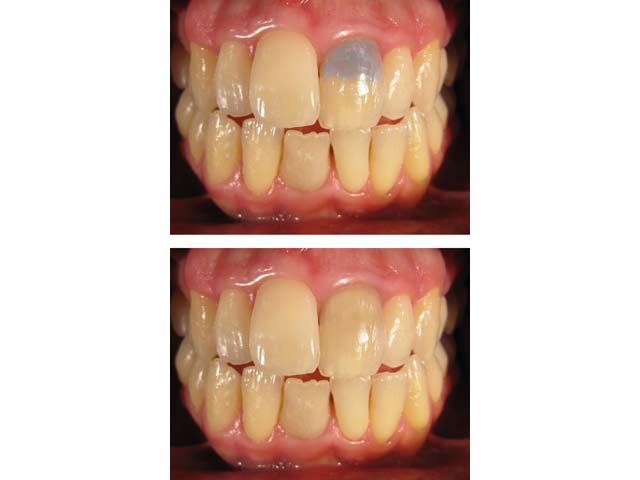 internes-bleaching vorher und nachher