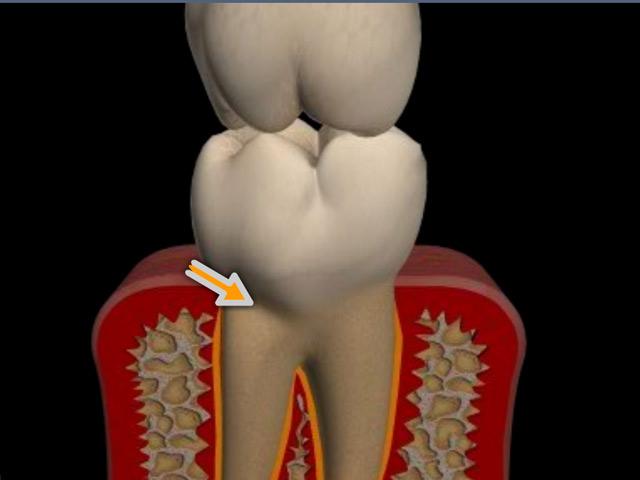Zahnhartsubstanzdefekt an der Schmelzzementgrenze