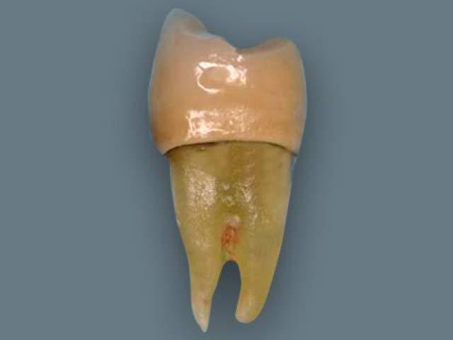 Штифт для сломанного зуба