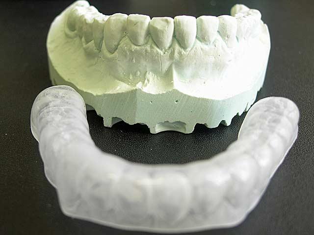 Mundvorhofplastik