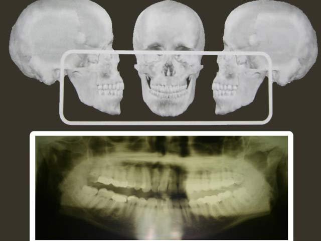 opg röntgen