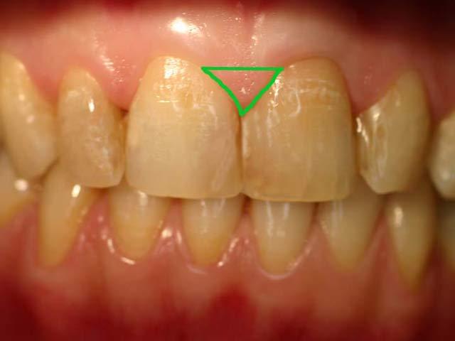 Десны сосочки между зубами