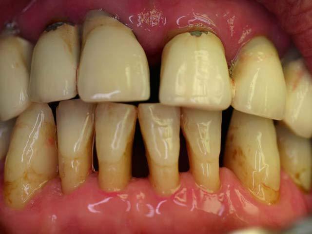 parodontitis Entzündung