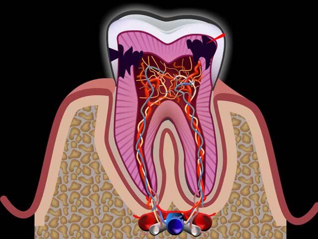 Zahnnerventzündung
