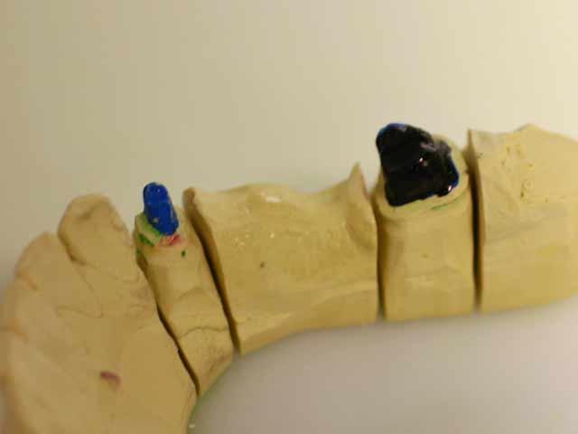 Zahnstumpfsanierung – Stumpfsanierung