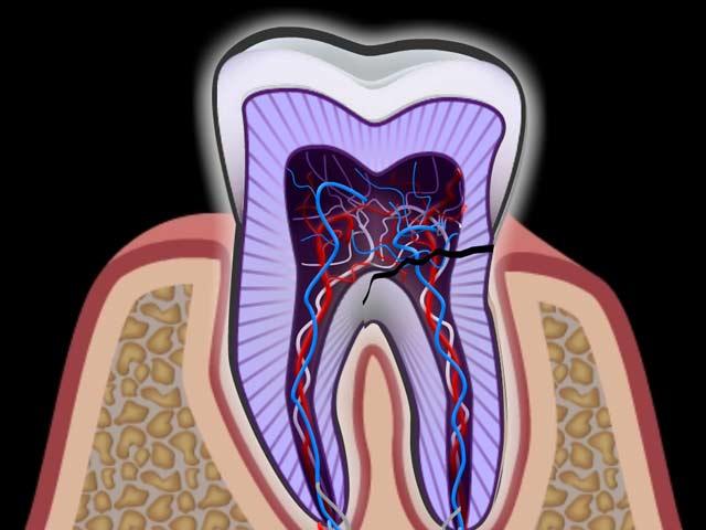 Bruch einer Zahnwurzel