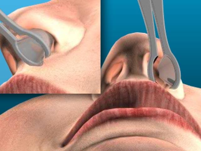 Kontrolle der Nasenschleimhaut