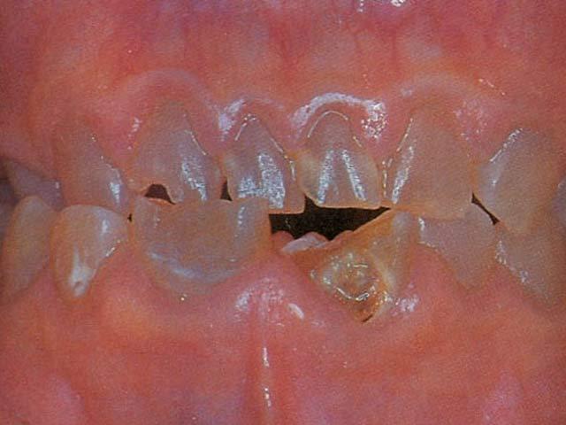 Fehlbildung der Zahnanlage