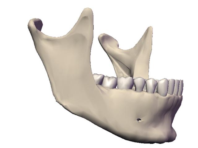 seitliche Abbildung der unterkieferzähne