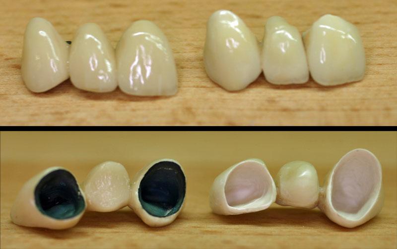 verschiedene zahnbruecken
