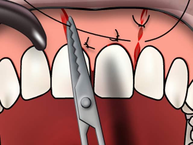 Zahnfleischnaht
