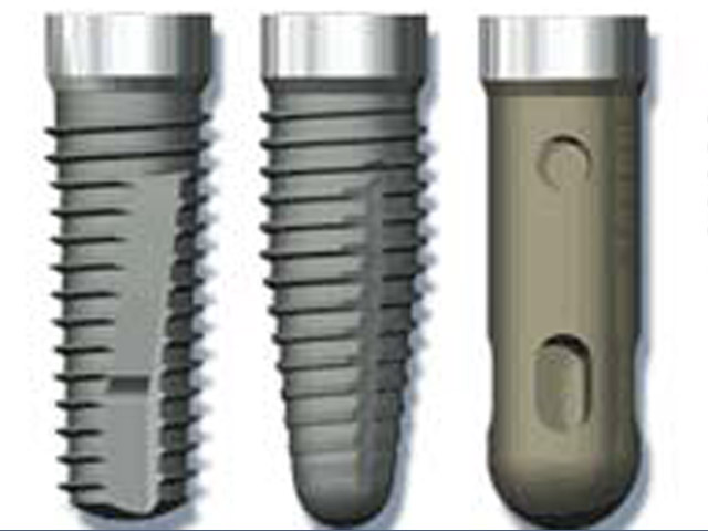 verschiedene arten von Titan Zahnimplantate