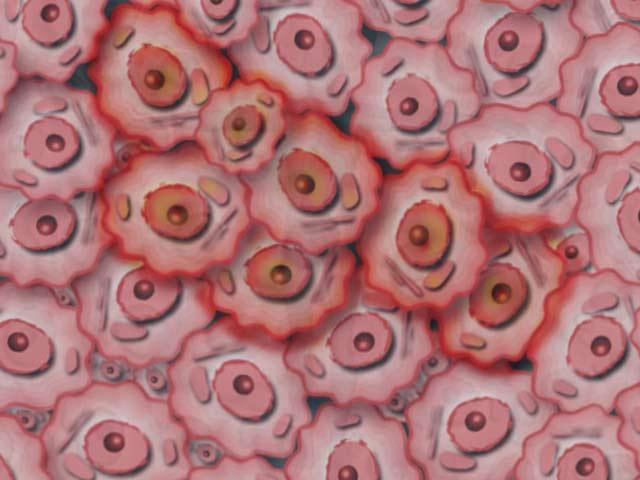 Zahntumor Zellen