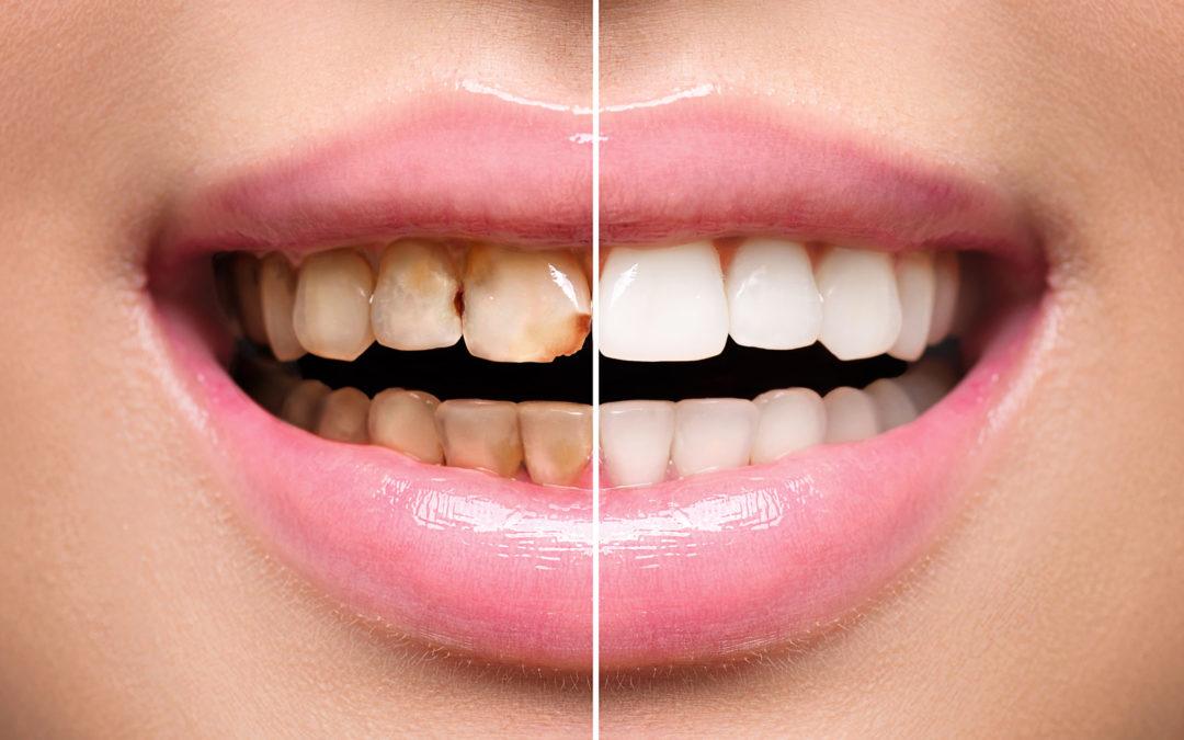 was sind Zahnveneers