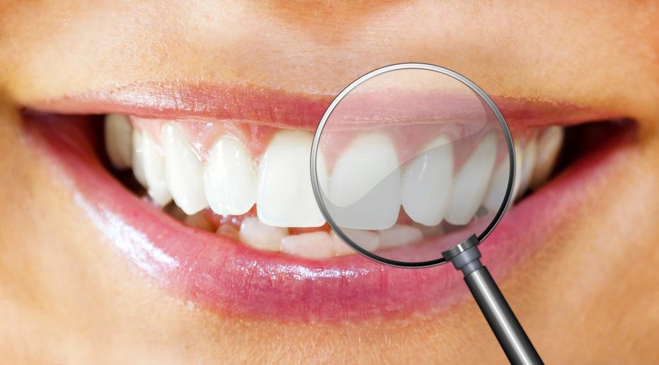 Welche Zahnfüllung ist die Beste für mich?