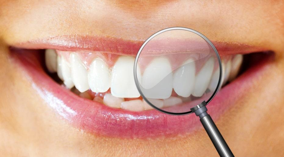 wie oft sollte man zum Zahnarzt gehen
