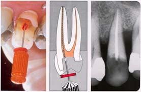 Bilder von Zahn Wurzelbehandlung