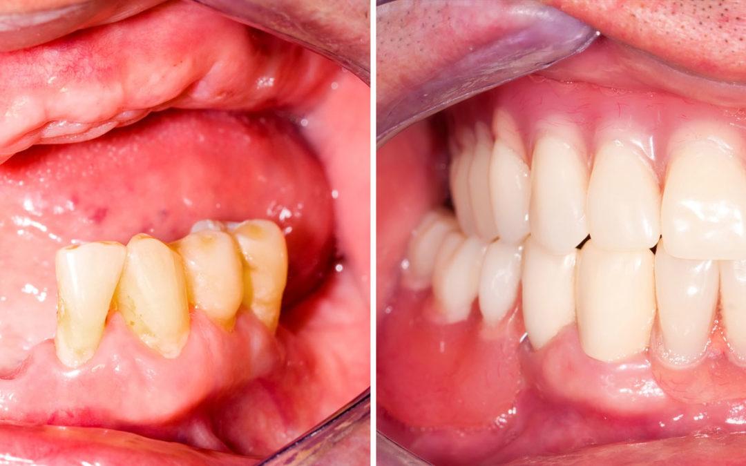 Zahnersatz Varianten