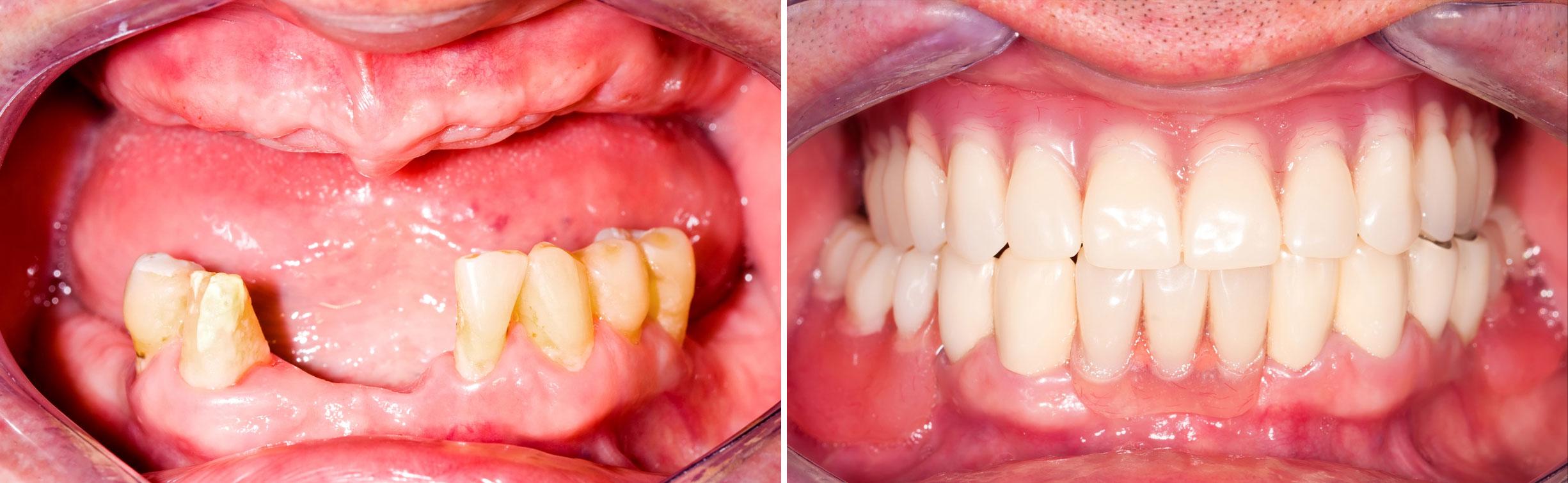 Zahnimplantate Entfernen Forum