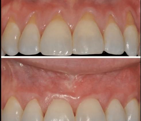 vorher nachher Bild Zahnfleisch Operation