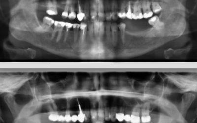 Zahnröntgen Besprechung Fall 2