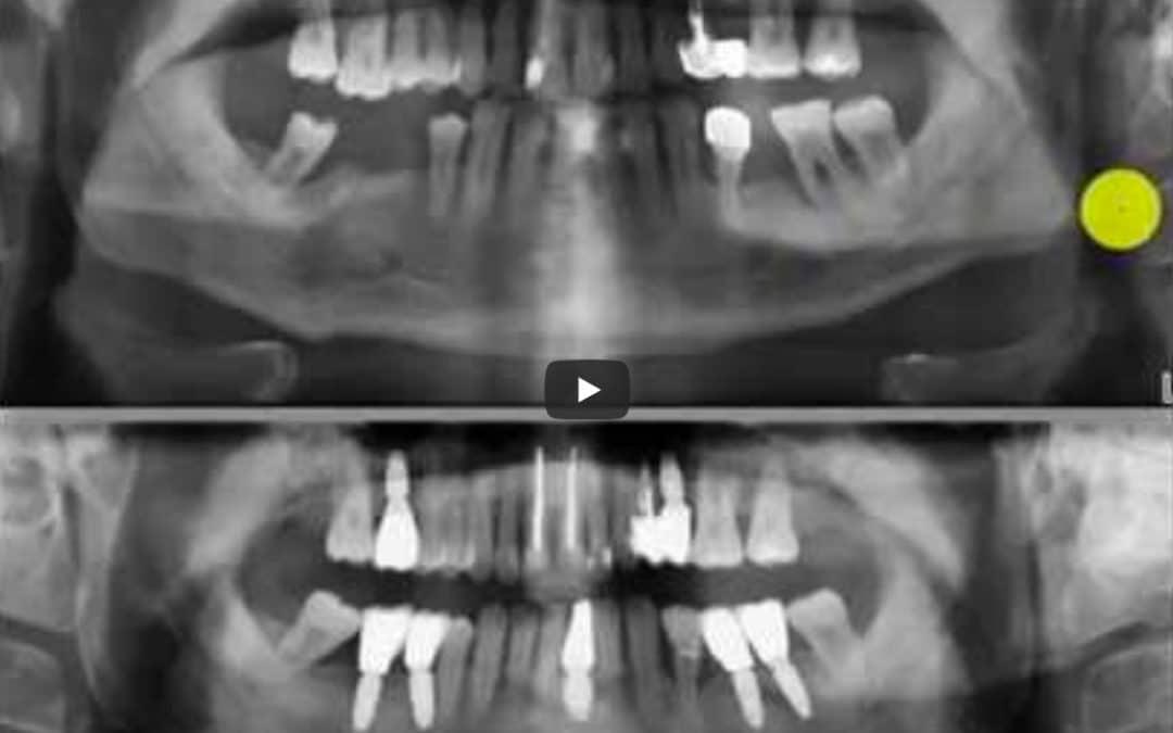 Zahnröntgen Besprechung Fall 4