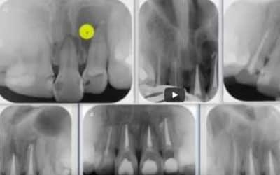 Zahnröntgen Besprechung Fall 5