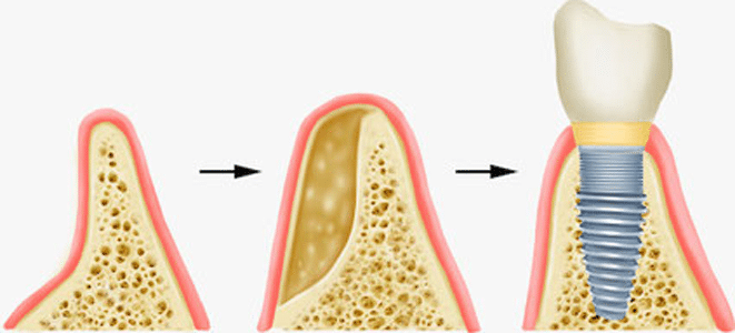 Knochenaufbau für Zahnimplantate