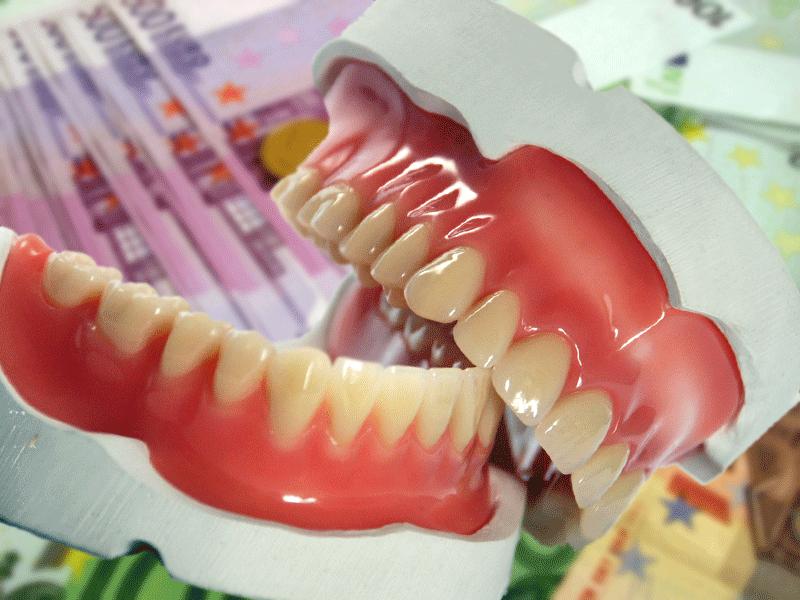 Was kosten neue Zähne