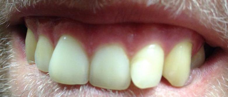 Zahnfleisch Weiße Punkte