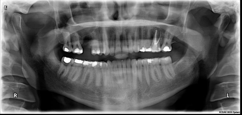 Wird grau zahn wurzelbehandelter Wurzelbehandelter Zahn