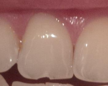 Zahn abgebrochen stück Zahn abgebrochen: