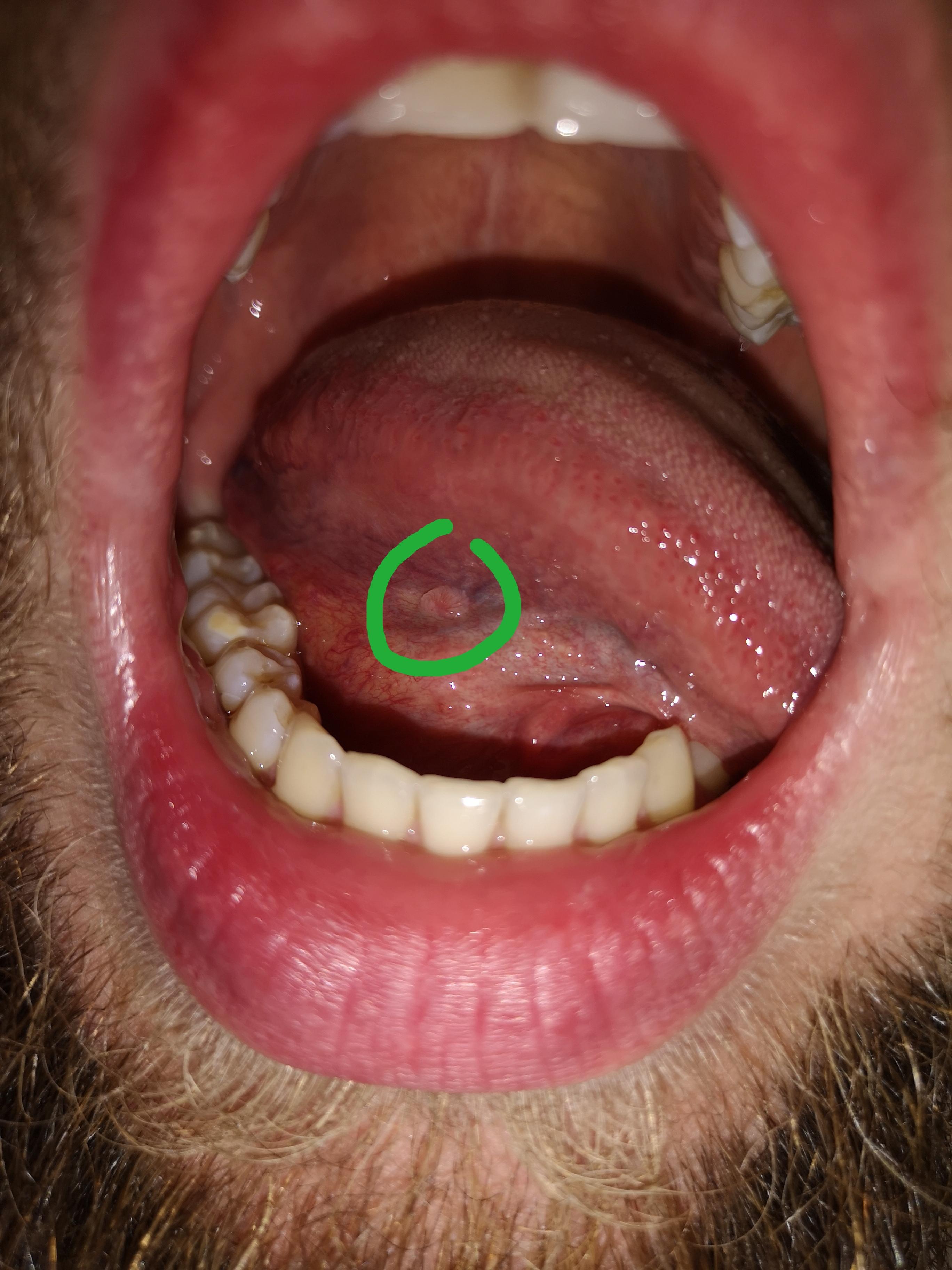 Geschwür unter der Zunge - Denta Beaute